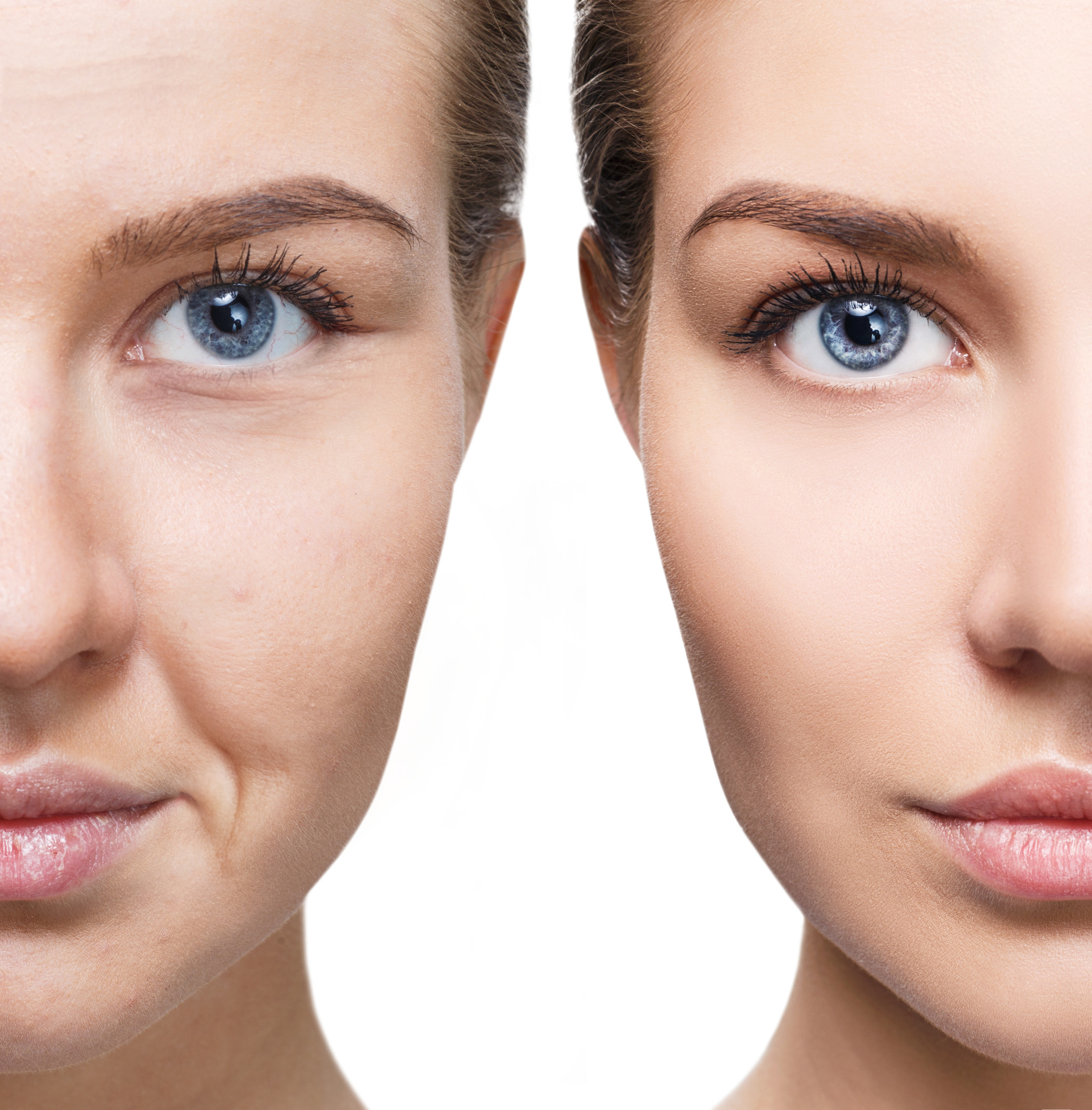Radiofrequenz Lifting - Anti-Aging